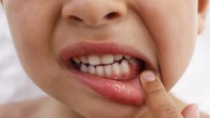 Воспаление десен у маленьких детей с фото: что делать, если слизистая опухла и покраснела?