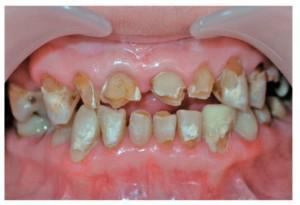 Причины возникновения некроза твердых тканей зубов, его разновидности (кислотный и компьютерный) и лечение