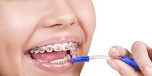 Зубные щетки для брекетов: какие ершики лучше, можно ли чистить зубы электрическими устройствами?