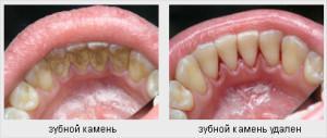 Чем зубной камень опасен для человека, откуда он берется и нужно ли его удалять?