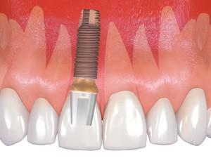 Достоинства и недостатки корейских зубных имплантов Osstem, стоимость системы