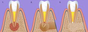 Показания к резекции верхушки корня зуба и способы лечения кисты под коронкой описание и видео процедуры