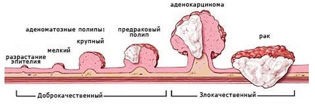 Опухолевая трансформация при хроническом протекании такого гастрита