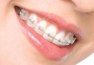 Можно ли делать рентген и МРТ головы с брекетами и ретейнерами на зубах?