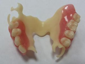 Плюсы и минусы съемных ацеталовых зубных протезов и их разновидности с фото