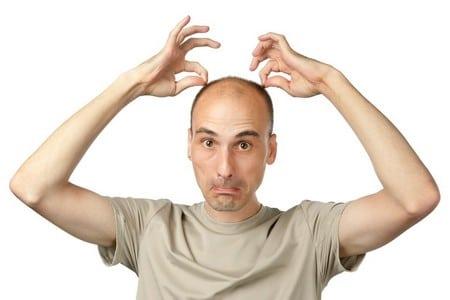 Выпадают волосы у мужчины
