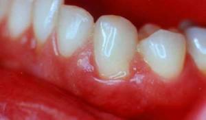 Признаки аллергического стоматита с фото, лечение заболевания слизистой оболочки полости рта у детей и взрослых