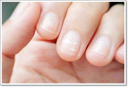 Тревожные изменения ногтей: что делать?