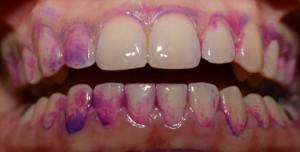 Классификация и методы выявления минерализованных и неминерализованных зубных отложений