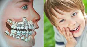 Зачем человеку нужны зубы для чего служат резцы или клыки и можно ли без них жить?