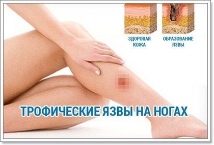 Трофические язвы на ногах и их лечение