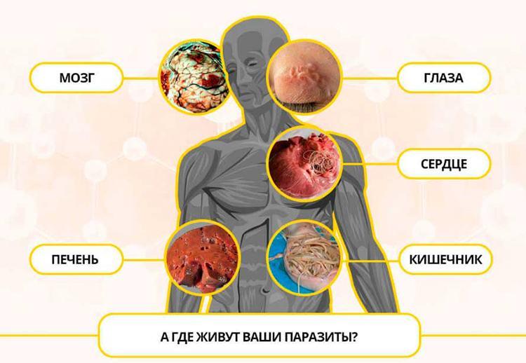 инфографика где живут паразиты