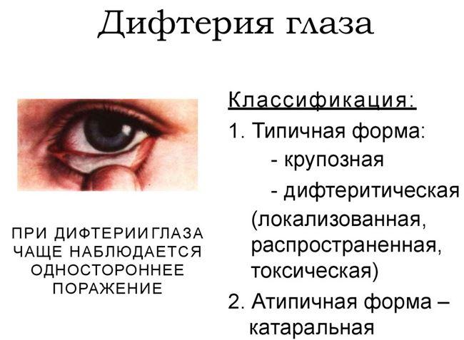Дифтерия: виды и симптомы болезни