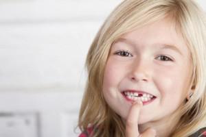 Что будет, если проглотить зуб, коронку или протез со штифтом: нужно ли идти к врачу?