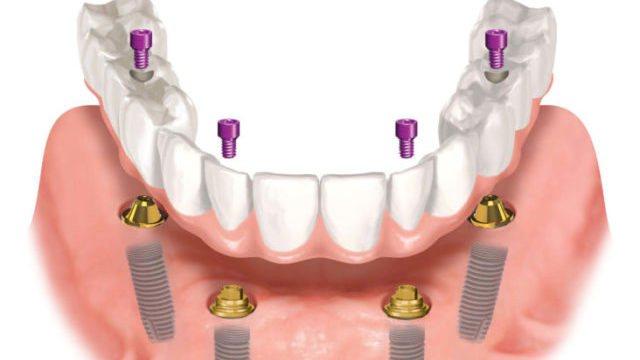 Что важно знать об All on 4 имплантации