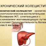 Хронические формы холецистита