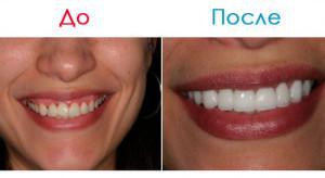 Что лучше люминиры или голливудские виниры на передние зубы: отличия с фото, плюсы и минусы