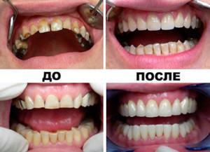 Изготовление и установка металлокерамической коронки на зубы с фото до и после, отличие от керамики, плюсы и минусы