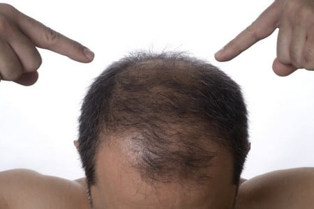 У мужчины выпадают волосы