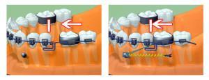 Протезирование микроимплантами в ортодонтии: виды фиксации зубных протезов и этапы установки