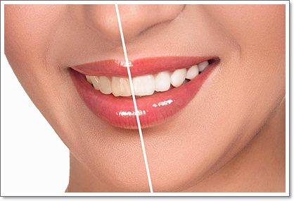 10 способов отбеливания зубов домашними средствами