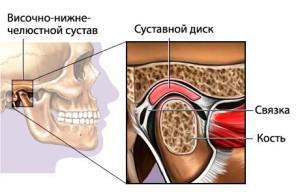 Почему при открытии рта и когда жуешь может болеть челюсть возле уха, каковы сопутствующие симптомы и что делать?