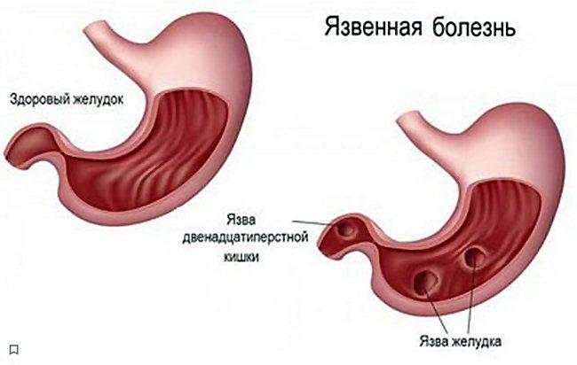 Особенности диеты при язве двенадцатиперстной кишки, питание больного