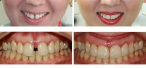 Как убрать диастему: исправление щели между передними зубами с фото до и после