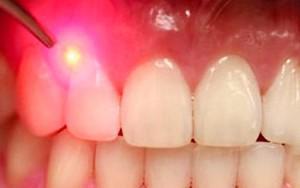 Процедура ретракции десны: что это такое и какие материалы применяются в стоматологии с этой целью?