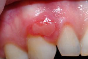 Симптомы эпулиса на десне с фото, способы лечения фиброзного, ангиматозного или гигантоклеточного вида заболевания