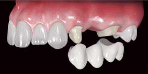 Современные способы протезирования и технологии лечения: новые материалы для искусственных зубов и зубных протезов