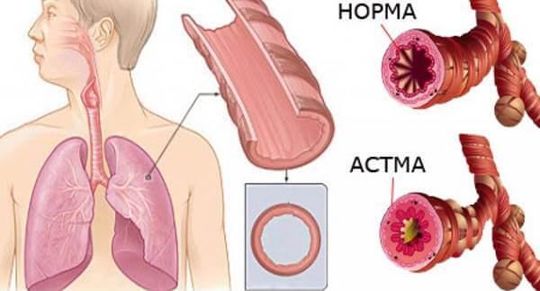 Бронхиальная астма: причины, диагностика, лечение