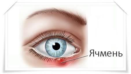 Гнойные выделения из глаз правильное лечение
