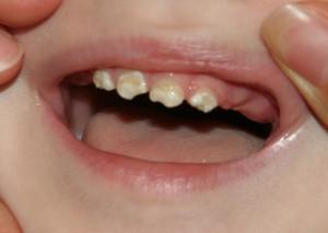 Почему у ребенка в 1-2 года разрушаются молочные зубы и крошится эмаль, что делать?