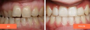 Как исправить передние зубы, если они выпирают вперед после ношения брекетов?
