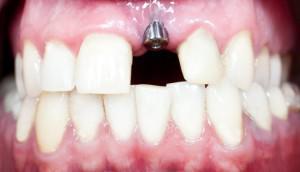 Симптомы отторжения импланта зуба сколько он приживается на верхней и нижней челюсти?