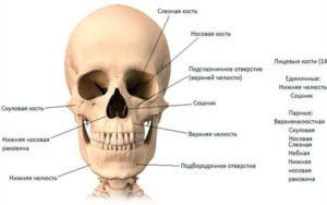 Лечение перелома скуловой кости со смещением и без: каковы последствия и нужна ли операция?
