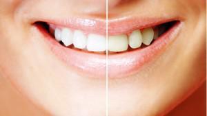 Определение естественного цвета зубов по шкале Вита: от чего зависит оттенок эмали, какой должен быть в норме?