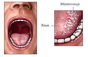 Фото кандидоза языка у взрослых: симптомы молочницы, лечение грибка препаратами и народными средствами