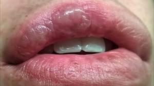 Чем лечить ожоги на губе: симптомы, первая помощь и общая тактика терапии
