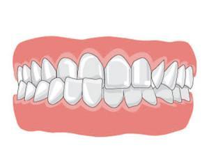 Формирование перекрестного прикуса со смещением нижней челюсти: лечение в ортодонтии с фото до и после исправления