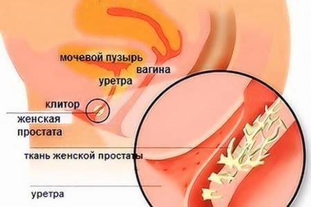железа Скина