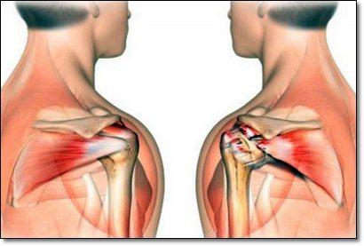 Схема лечения остеохондрозе