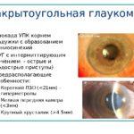 Закрыто угольная глаукома