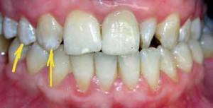 Симптомы флюороза зубов у взрослых и детей с фото, классификация и лечение заболевания