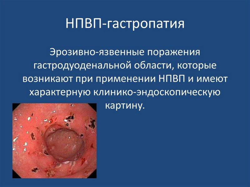 Определение гастропатии