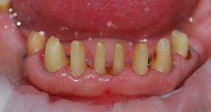 Больно ли обтачивать зуб под металлокерамическую коронку, как происходит препарирование?