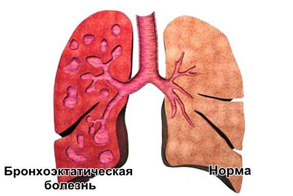 Бронхоэктатическая болезнь: определение, симптомы и лечение