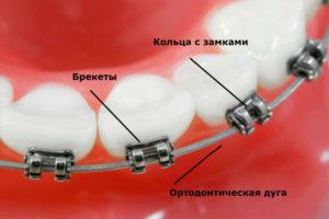 Виды ортодонтических дуг для брекетов, изгибы и другие параметры, показания и противопоказания