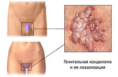 Клиника вирусного заболевания